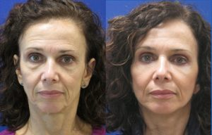 Before and After laser assisted lower facelift, neck lift, blepharoplasty by Dr. Ritu Malhotra, facial plastic surgeon, Cleveland, OH