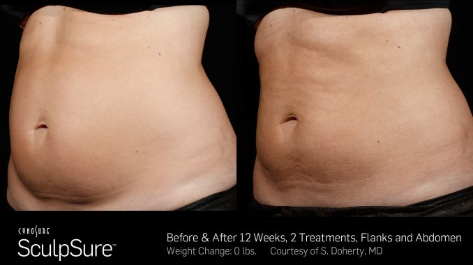 SculpSure Before and After offered by Dr. Mitchell Blum facial plastic surgeon, San Francisco Bay Area, California, Dr. Brian Machida, facial plastic surgeon, Inland Empire, CA