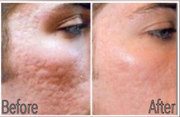 Exit Co2 Laser Enter Micro Needling Lookyounger News