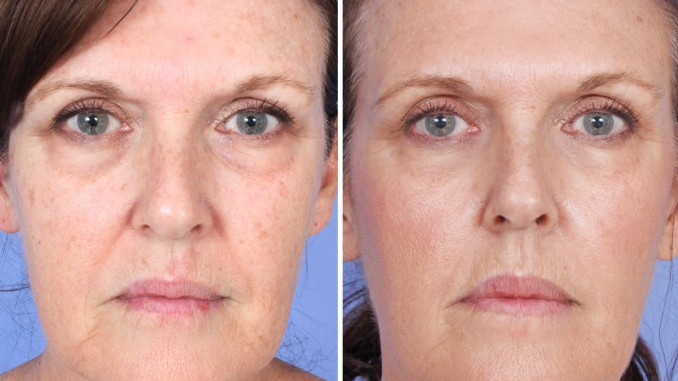 Before and After micro-needling