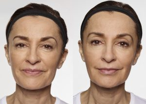 Restylane silk Before and After photo - available from Dr. Brian Machida, facial plastic surgeon, Inland Empire California