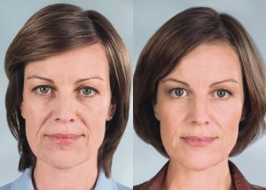 Sculptra Before and After photo - available from Dr. Brian Machida, facial plastic surgeon, Ontario, California