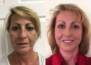 Before and After plasma skin resurfacing, nonsurgical cosmetic procedure, by Dr. Arnold Almonte, plastic surgeon, Sacramento CA