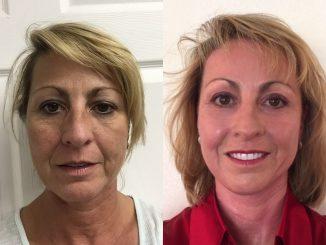 Renuvion, J-Plasma, plasma skin resurfacing, Dr. Arnold Almonte, plastic surgeon, Sacramento CA