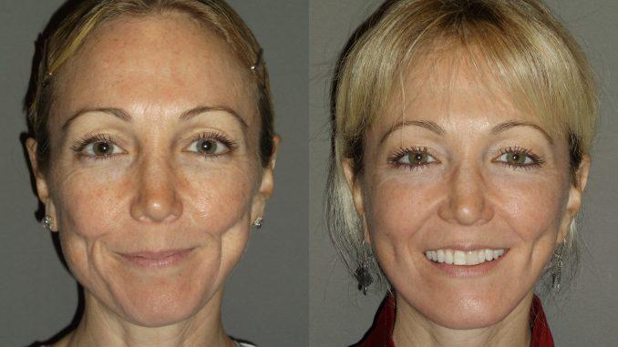 Facelift, neck lift by Dr. Brian Machida, facial plastic surgeon, Inland Empire, California