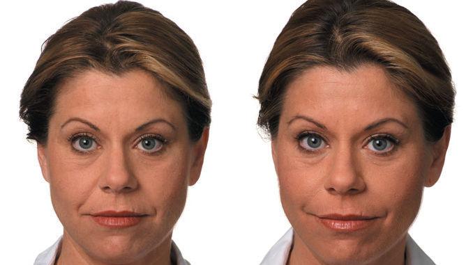 Dr. Ritu Malhotra Filler Before & After
