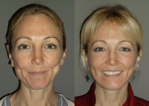 Before & After facelift by Dr. Brian Machida