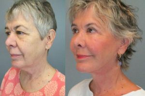 before-after-facelift-by-dr-elizabeth-whitaker