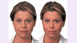 Juvederm, Voluma, Restylane cheek filler Cleveland by Dr. Ritu Malhotra, facial plastic surgeon, Cleveland, OH