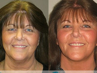 double chin, turkey neck, Facelift, neck lift by Dr. Brian Machida, facial plastic surgeon, Inland Empire, California