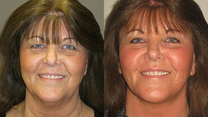 double chin, turkey neck, Facelift, neck lift by Dr. Brian Machida, facial plastic surgeon, Inland Empire, California