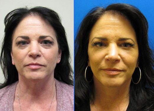 Blepharoplasty by Dr. Arnold Almonte, plastic surgeon, Sacramento, California