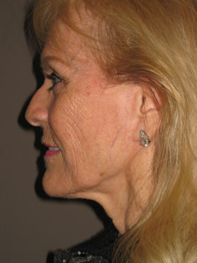 Before facelift and fractional laser skin resurfacing by Dr. Brian Machida, facial plastic surgeon, Inland Empire, California