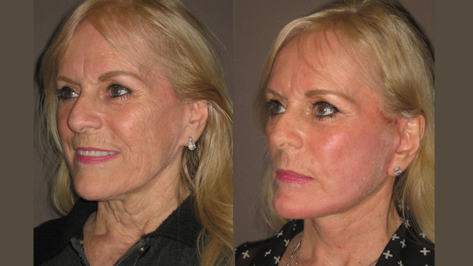Before & After facelift, fractional laser resurfacing by Dr. Brian Machida, facial plastic surgeon, Inland Empire, CA