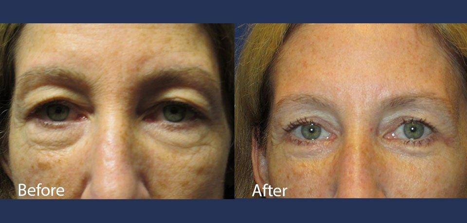 California facial plastic surgeon