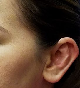 After otoplasty by Dr. Mitchell Blum, facial plastic surgeon, Tracy, San Francisco, California