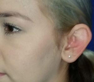 Big ear before Otoplasty ear surgery by Dr. Mitchell Blum, facial plastic surgeon, Tracy, San Francisco, CA