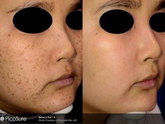 PicoSure Before & After Latina complexion, brown spot, age spot removal offered by Dr. Brian Machida, facial plastic surgeon, Inland Empire, California