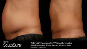 SculpSure alternative to liposuction Before & After offered by Dr. Brian Machida, facial plastic surgeon, Inland Empire, California