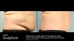 SculpSure Before & After, female, offered by Dr. Brian Machida, facial plastic surgeon, Inland Empire, CA