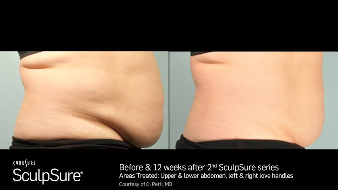 SculpSureb, Before and After, offered by Dr. Mitchell Blum, San Francisco Bay Area, CA, Dr. Brian Machida, Inland Empire, California, facial plastic surgeon