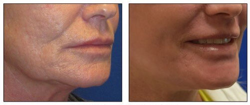 J Plasma Wrinkles 2 Before Amp After Treatment By Dr Arnold