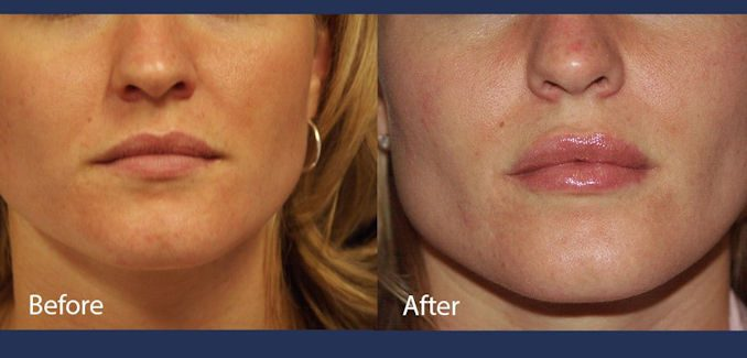 Lip enhancement, for full lips before and after lip injections by Dr. Mitchell Blum, facial plastic surgeon, San Francisco East Bay California