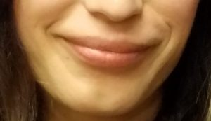 lip injections, after Refyne lip filler by Dr. Mitchell Blum, facial plastic surgeon, San Francisco East Bay CA