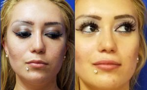lip injections, Before and After Refyne injection by Dr. Mitchell Blum, facial plastic surgeon, San Francisco East Bay California