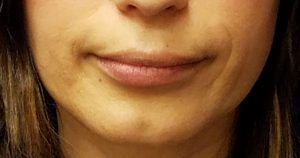 lip injections, before Refyne lip filler by Dr. Mitchell Blum, facial plastic surgeon, San Francisco East Bay California
