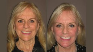 Christine Before & After facelift and fractional laser resurfacing by Dr. Brian Machida, facial plastic surgeon, Inland Empire, California