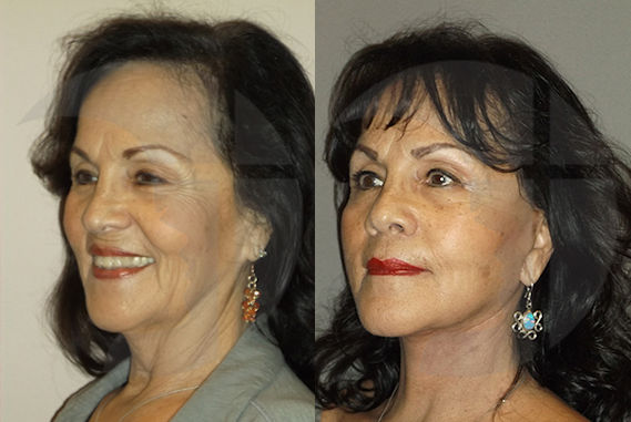 jowls Inland Empire, facelift, neck lift by Dr. Brian Machida, facial plastic surgeon, Inland Empire, Ontario, California