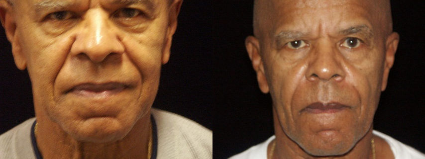 Sculptra, Before and After, Dr. Mitchell Blum, facial plastic surgeon, San Francisco, Bay Area, California