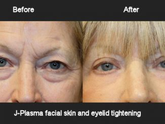 J-Plasma skin and eyelid tightening offered by Dr. Brian Machida, facial plastic surgeon, Inland Empire, Los Angeles,CA, Dr. Arnold Almonte, plastic surgeon, Sacramento, California