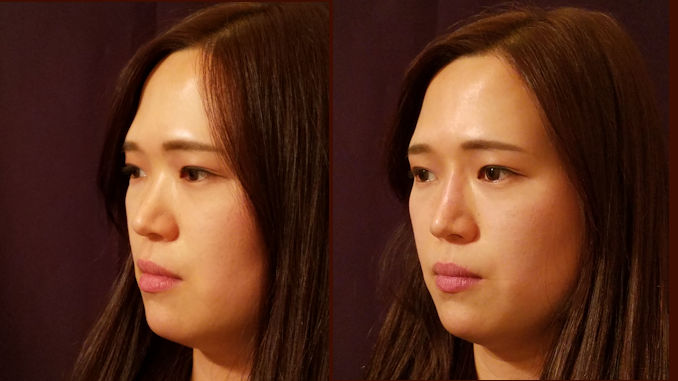 Liquid Rhinoplasty, liquid nose job by Dr. Mitchell Blum, facial plastic surgeon, San Francisco Bay Area, California, CA Before and After