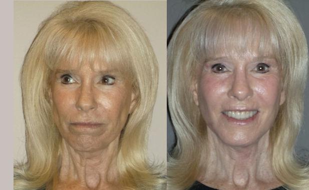 facelift, J-Plasma by Dr. Brian Machida, facial plastic surgeon, Inland Empire, Los Angeles, CA, California