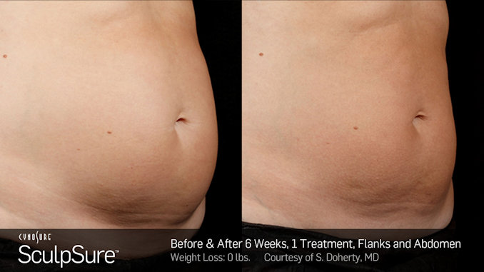 SculpSure, Before and After, alternative to liposuction, CoolSculpting, offered by Dr. Brian Machida, Inland Empire, CA, Dr. Mitchell Blum, San Francisco, Bay Area, California