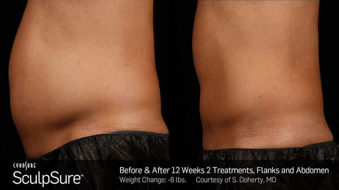 SculpSure alternative to liposuction, CoolSculpting offered by Dr. Brian Machida, Inland Empire, Dr. Mitchell Blum, San Francisco Bay Area, CA, California