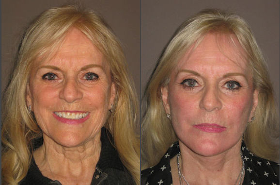 turkey neck, neck lift, Inland Empire, Before and After photo, by Dr. Brian Machida, facial plastic surgeon