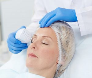 laser, Alma Accent RF upper blepharoplasty offered by Dr. Brian Machida, facial plastic surgeon, Inland Empire, CA