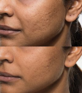 Bellafill acne scar, acne scarring treatment offered by Dr. Brian Machida, facial plastic surgeon, Inland Empire, CA