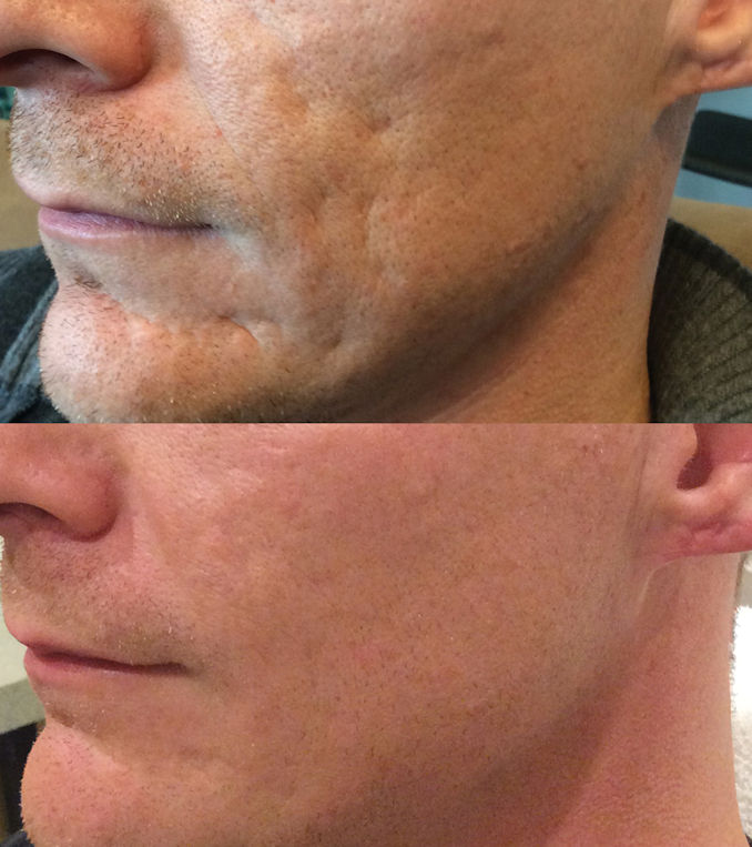 Bellafill for acne scars, acne scarring in Inland Empire offered by Dr. Brian Machida, facial plastic surgeon