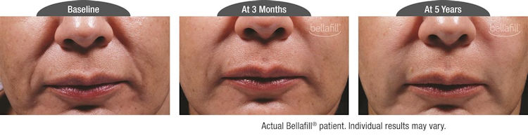 Bellafill, filler, nasolabial folds, Before and After photos, Inland Empire, CA