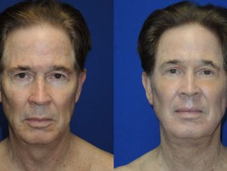 Renuvion J-Plasma San Diego, CA, Carlsbad, California Dr. William Seare, 71 Before and After photo