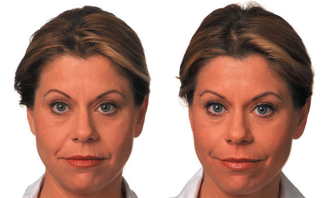 Fillers Cleveland, nasolabial folds Cleveland, Before and After by Dr. Ritu Malhotra, facial plastic surgeon