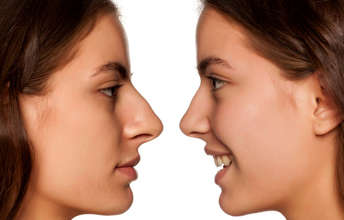 Rhinoplasty Inland Empire Before and After, offered by Dr. Brian Machida, facial plastic surgeon