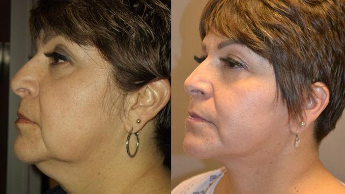 jowls, Inland Empire,facelift Inland Empire, natural, Dr. Brian Machida, facial plastic surgeon