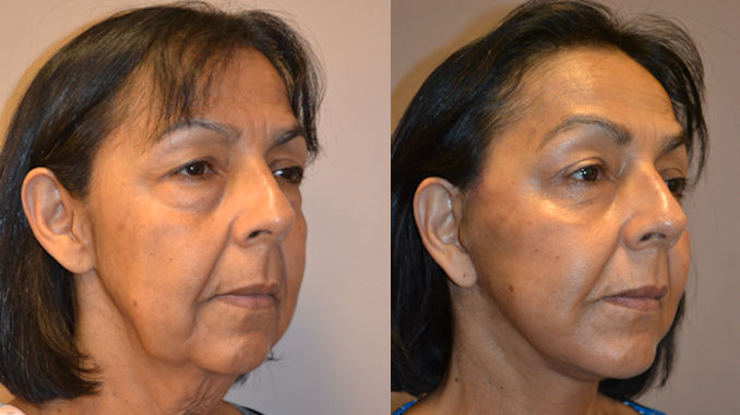 facelift Inland Empire by Dr. Brian Machida, facial plastic surgeon