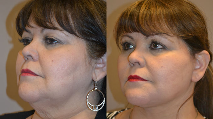 double chin Inland Empire, facelift Inland Empire, neck lift Inland Empire by Dr. Brian Machida, facial plastic surgeon