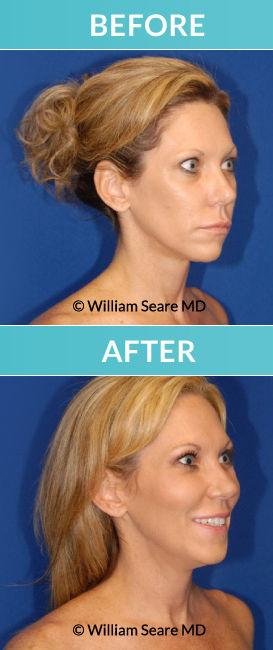 fat transfer San Diego, hyperbaric San Diego, Dr. William Seare, plastic surgeon